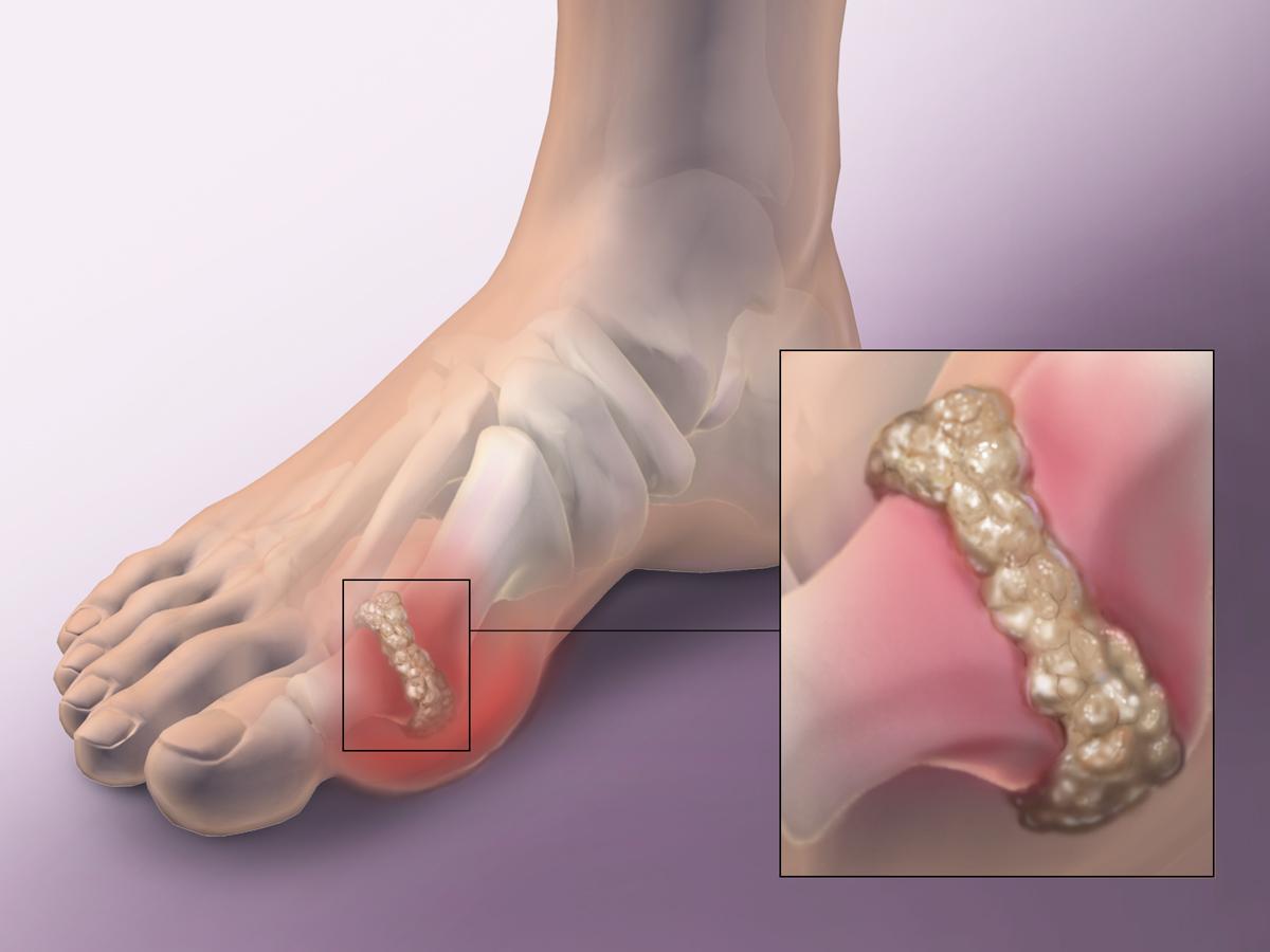 gout disease:
